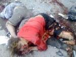Артобстрел Донецка привел к новым жертвам – горсовет